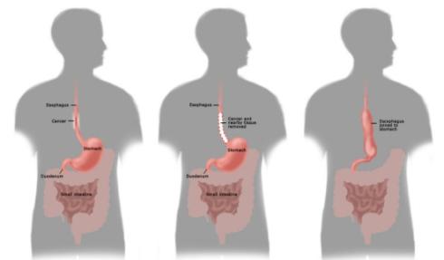 Stingley-esophagectomy