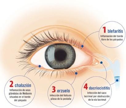 blefaritis1