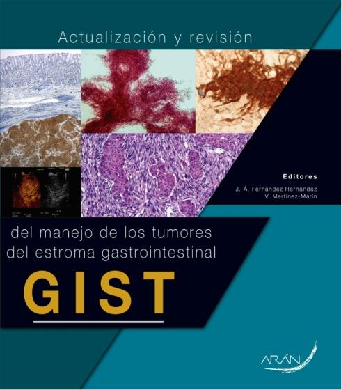 Actualizacion-y-revision-del-manejo-de-los-tumores-del-estroma-gastrointestinal-GIST
