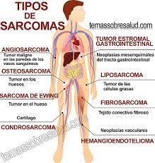 sarcomas