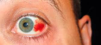 hemorragia ocular